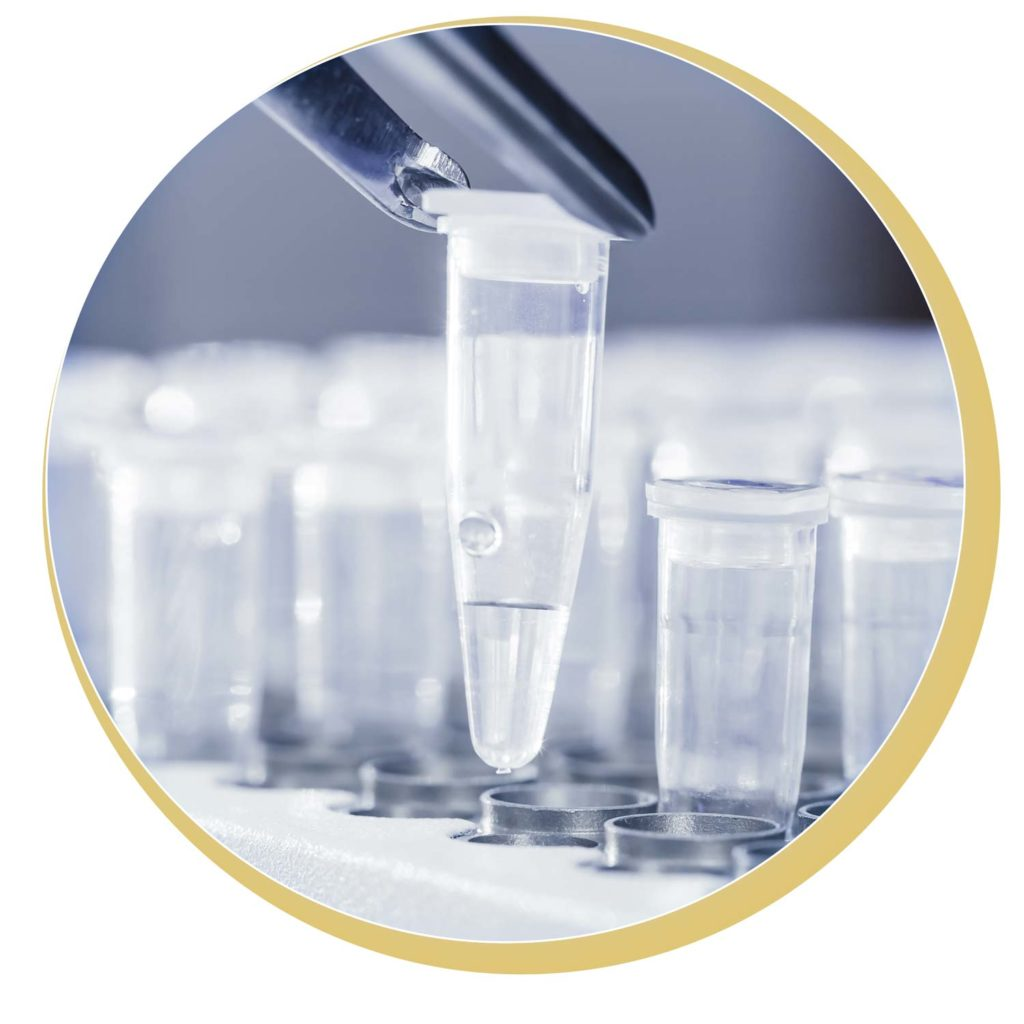 Shape-Line DNA GenoCheck durchführen, Genanalyse zum Abnehmen