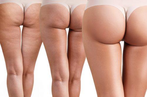 Wichtige-Tipps-im-Kampf-gegen-Cellulite-Beitragsbild